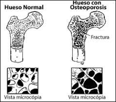 Resultado de imagen para osteoporosis tercera edad