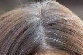 Resultado de imagem para cabelos brancos