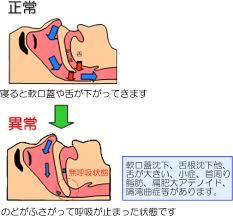 「無呼吸症 画像」の画像検索結果