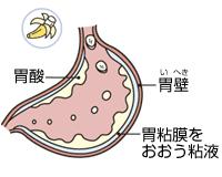 「胃の粘膜 修正」の画像検索結果