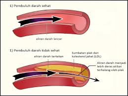 Image result for detox darah shaklee