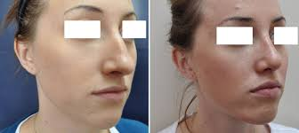 Image result for nose surgery