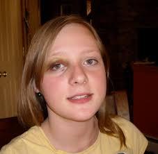Black Eye They call it a black eye? - Black%2520eye%25202
