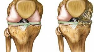 Resultado de imagen para cartilago de rodilla sano