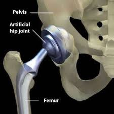 Total <b>Hip Joint</b> Replacements - THR / THA - <b>Max</b> Superspecialty ...