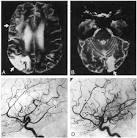 lupus vasculitis, central nervous system