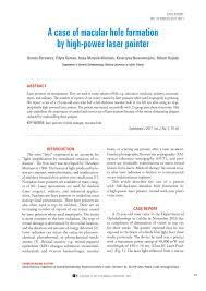 (PDF) A case of macular hole formation by <b>high</b>-<b>power laser pointer</b>