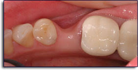 Image result for ridge loss tooth