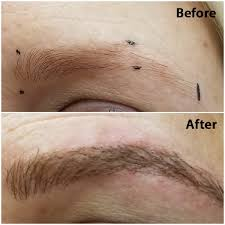 <b>Permanent Makeup</b> & <b>Microblading</b> | Timeless Elements