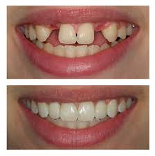 Before and After Patient photo of two missing top front teeth and dental implant replacements