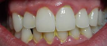Image result for gingivitis