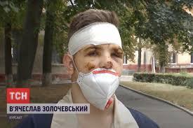 Единственный <b>выживший</b> в авиакатастрофе под Харьковом ...