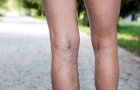 <b>Leg veins</b>: Why they appear and how dermatologists treat them