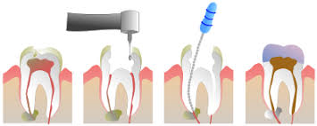 Image result for Endodontics