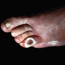 Image result for diabetes skin symptoms