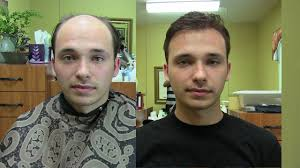 Non-Surgical Hair Replacement (Toupee of Today) - YouTube