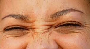 Image result for bunny lines botox