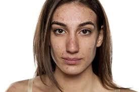 Royal Indulgence Lodhradi Skin Repair - 100% Natural Lodhra ...