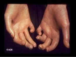 نتيجة بحث الصور عن scleroderma images