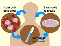 drake biomedical institute stem cell therapies available now in autologous adult stem cell therapy the patient uses their own stem cells for healing