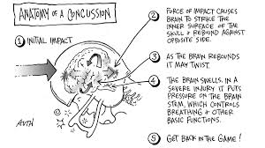 tackling concussions athletes vs the game of life english  the american association of neurological surgeons report that 62 000 concussion are reported each year among players participating in high school contact