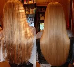 Картинки по запросу картинки ультразвукового восстановления волос
