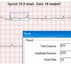 Review: <b>CONTEC</b> Handheld <b>Portable ECG</b> Heart Rate Monitor ...
