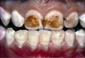 Znalezione obrazy dla zapytania Zęby uszkodzone przez fluor