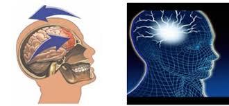 「頭部外傷」の画像検索結果
