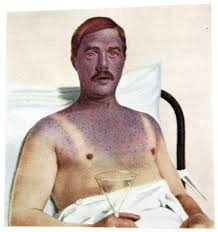 vintage medical diagrams   made in englandchap   a moustache  not well at all in a hospital bed