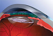 Which Lens is Right for You? | <b>Eye</b> Physicians and Surgeons of ...
