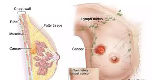 Image result for Breast Cancer Signs