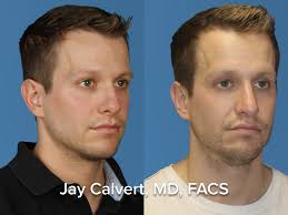 revision rhinoplasty male expert beverly hills revision rhinoplasty male