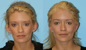 dr balikian otoplasty gallery otoplasty before and after otoplasty before and after