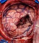 Images & Illustrations of brain surgery