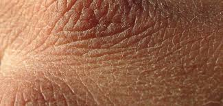 Image result for dry skin