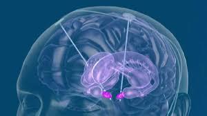 http://www.bnasurg.com/treatments-minimally-invasive-spine-surgery.php