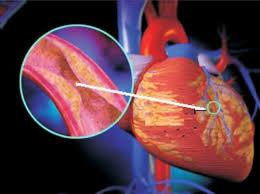 Bệnh xơ vữa động mạch là gì? - 1