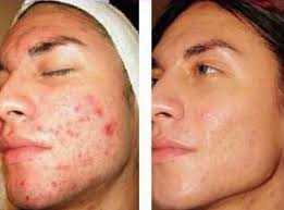Image result for acne before after pictures