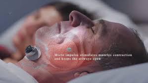 <b>Smart Anti</b>-Snoring Muscle Simulators : <b>Snore Circle</b>