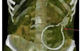 anguille Images?q=tbn:ANd9GcTni1-d77a7dJO3Z4FW1z7u_No9rmTCEPij4XdYek5qW10Thf0p
