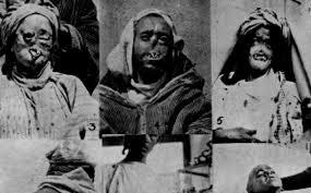 """Résultat de recherche d'images pour """"صور من الحرب الكيماوية بالريف"""""""