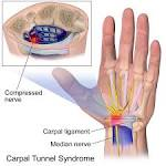 Images & Illustrations of carpal tunnel syndrome