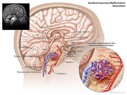 Cerebral Cavernous Malformation (CCM) also known as cavernoma ... via Relatably.com