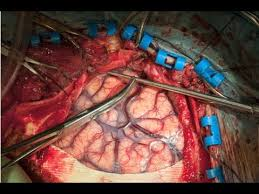 Image result for Brain  Surgery