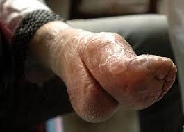 Image result for binding women torture