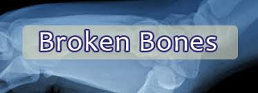Image result for broken bones images