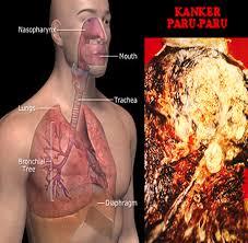 Obat tradisional penyakit kanker paru-paru