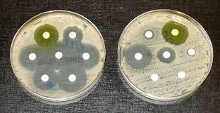 antibiotic resistance simple english the antibiotics in the discs in the culture on the left prevent bacteria from proliferating diams bacteria in the culture on the right are resistant to most