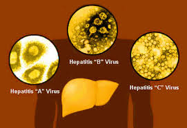 Image result for hepatitis